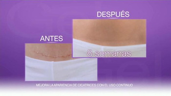 Cicatricure Gel TV Spot, 'Cicatrices' [Spanish] - Thumbnail 7