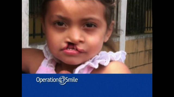 Operation Smile TV Spot, 'Una Sonrisa Nueva' [Spanish] - Thumbnail 4