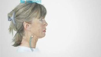 Derma Wand TV Spot - Thumbnail 4