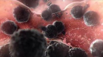 Oregon Health & Science University TV Spot, 'Make Cancer a Victim' - Thumbnail 8
