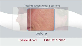 Face FX TV Spot, 'Concerned About Wrinkles?' - Thumbnail 7