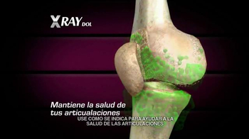 X Ray Dol TV Spot, 'Esqueleto' [Spanish] - Thumbnail 5