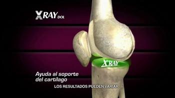 X Ray Dol TV Spot, 'Esqueleto' [Spanish] - Thumbnail 6