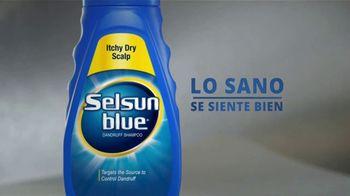 Selsun Blue TV Spot, 'Este chico' [Spanish] - Thumbnail 6
