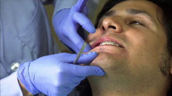 American Association of Orthodontists TV Spot, 'The Expert Smile' - Thumbnail 7