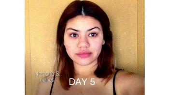 Neutrogena Rapid Clear Stubborn Acne TV Spot, 'Natasha's Story' - Thumbnail 1