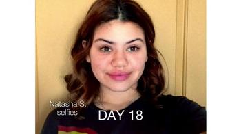 Neutrogena Rapid Clear Stubborn Acne TV Spot, 'Natasha's Story' - Thumbnail 2