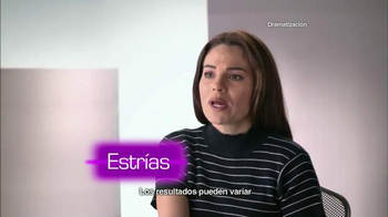 Cicatricure Gel TV Spot, 'Estrías reducidas' [Spanish] - Thumbnail 3