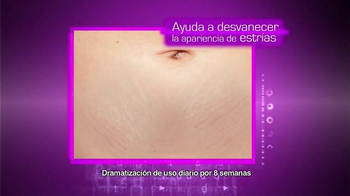 Cicatricure Gel TV Spot, 'Estrías reducidas' [Spanish] - Thumbnail 6