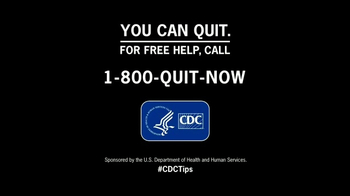 Center for Disease Control TV Spot, 'Tips from Former Smokers: Premature' - Thumbnail 6