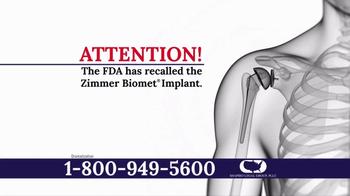 Shapiro Legal Group TV Spot, 'Zimmer Biomet Implant' - Thumbnail 2