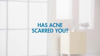 Bellafill TV Spot, 'Has Acne Scarred You?' - Thumbnail 1