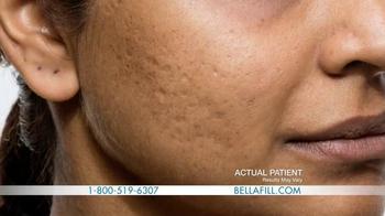 Bellafill TV Spot, 'Has Acne Scarred You?' - Thumbnail 4