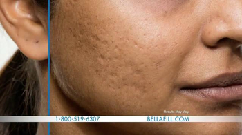 Bellafill TV Spot, 'Has Acne Scarred You?' - Thumbnail 6