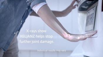 Xeljanz TV Spot, 'Better Things' - Thumbnail 5