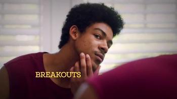 Proactiv TV Spot, 'Back to School' - Thumbnail 2