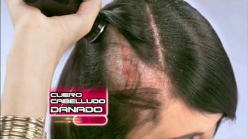 Medicasp TV Spot, 'La caspa: no es problema superficial' [Spanish]