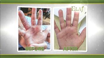 Elaj TV Spot, 'Help With Eczema' - Thumbnail 2