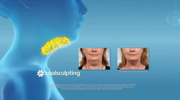 CoolSculpting TV Spot, 'Eliminate Your Double Chin' - Thumbnail 5