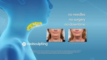 CoolSculpting TV Spot, 'Eliminate Your Double Chin' - Thumbnail 6