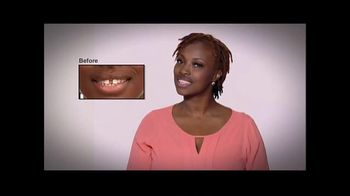 Perfect Smile Veneers TV Spot., 'Put Your Best Face Forward'