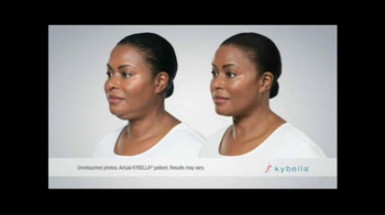KYBELLA TV Spot, 'Adra's Portrait in Action' - Thumbnail 6