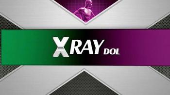 X Ray Dol TV Spot, 'Corrida por el bosque' [Spanish] - Thumbnail 1