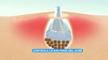 Asepxia Acne Treatment Cream TV Spot, 'Bacteria' con Paulina Goto [Spanish] - Thumbnail 6