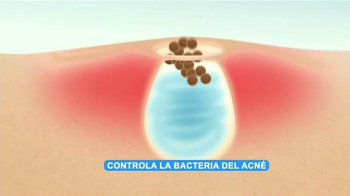 Asepxia Acne Treatment Cream TV Spot, 'Bacteria' con Paulina Goto [Spanish] - Thumbnail 7