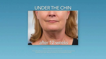 Zeltiq Aesthetics CoolSculpting TV Spot, 'Double Chin' - Thumbnail 4