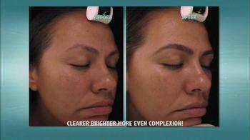 Wonder Sonic TV Spot, 'Deep Clean Your Face' - Thumbnail 6