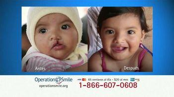 Operation Smile TV Spot, 'Extiende una mano' [Spanish]