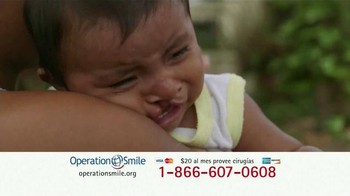 Operation Smile TV Spot, 'Extiende una mano' [Spanish] - Thumbnail 1