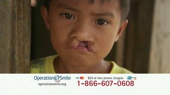 Operation Smile TV Spot, 'Extiende una mano' [Spanish] - Thumbnail 3