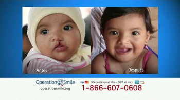 Operation Smile TV Spot, 'Extiende una mano' [Spanish]