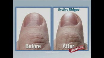 PedEgg ByeBye Ridges TV Spot, 'All in the Ridges' - Thumbnail 5