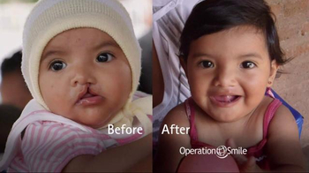 Operation Smile TV Spot, 'It Starts With One Child' Featuring Roma Downey