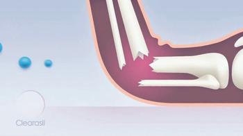 Clearasil Rapid Action TV Spot, 'Teen Problems: Broken Leg' - Thumbnail 4