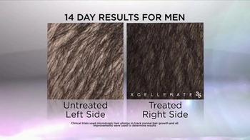 Xcellerate 35 TV Spot, 'Aging Hair'