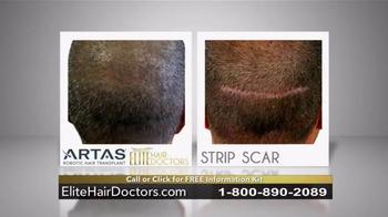 Elite Hair Doctors TV Spot, 'Permanent, Lifetime Growth' - Thumbnail 4