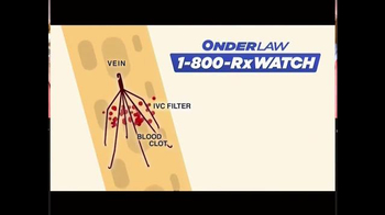 Onder Law Firm TV Spot, 'IVC Filter' - Thumbnail 2