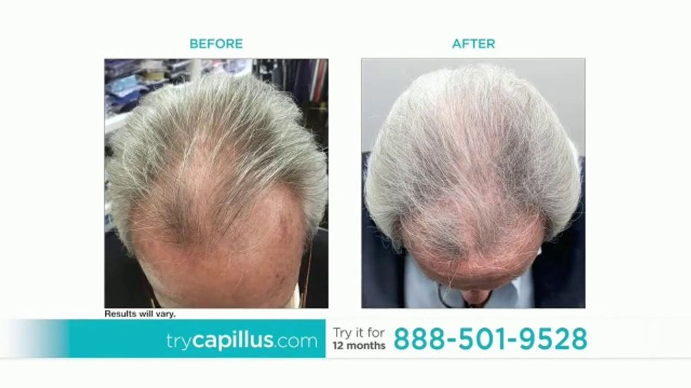 Capillus Tv Commercial Treat Hair Loss At Home Ispot Tv