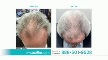 Capillus TV Spot, \'Treat Hair Loss at Home\'