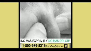 DermaSuction TV Spot, 'Extraer las impurezas' [Spanish] - Thumbnail 7