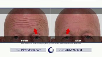 Plexaderm Skincare TV Spot, 'CEO Testimony' - Thumbnail 3
