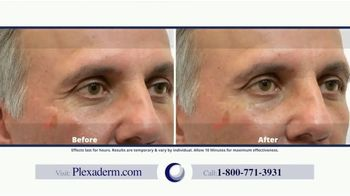 Plexaderm Skincare TV Spot, 'CEO Testimony' - Thumbnail 5