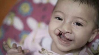 Operation Smile TV Spot, 'Cada niño es hermoso' [Spanish]