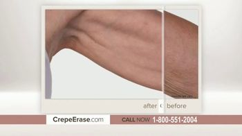 Crepe Erase Advanced TV Spot, 'Two Step Body Treatment System' Featuring Dorothy Hamill - Thumbnail 2
