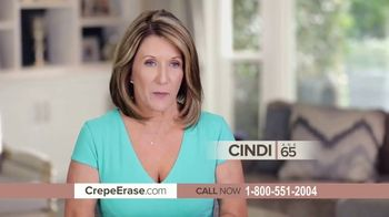 Crepe Erase Advanced TV Spot, 'Two Step Body Treatment System' Featuring Dorothy Hamill - Thumbnail 3