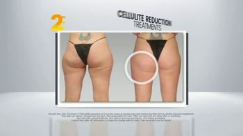 Sono Bello Sizzling Summer Special TV Spot, 'Two Free Cellulite Reduction Treatments' - Thumbnail 10
